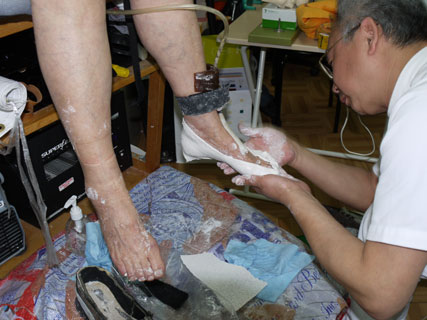 石膏で足型採取