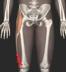 大腿筋膜張筋 正面