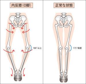 O脚と正常脚