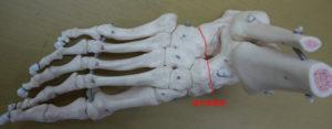 横足根関節