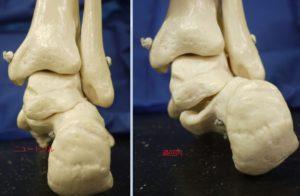 距骨下関節のニュートラルと過回内