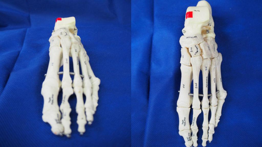 距骨滑車骨軟骨障害