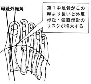 外反母趾の母趾外転角