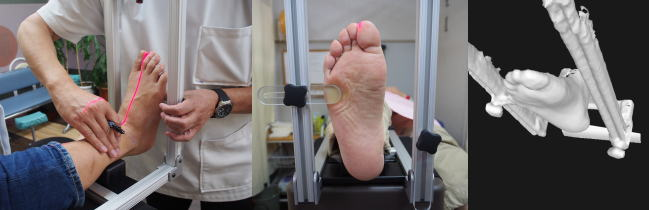 スマートキャストで正確な足の状態を再現します。
